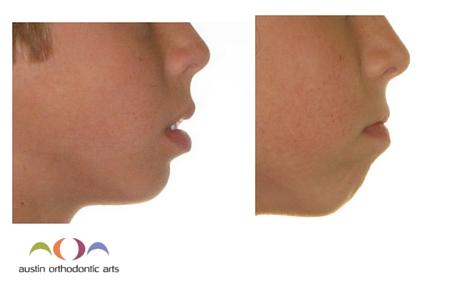 Facial Beauty P1 - Patient 1.jpg
