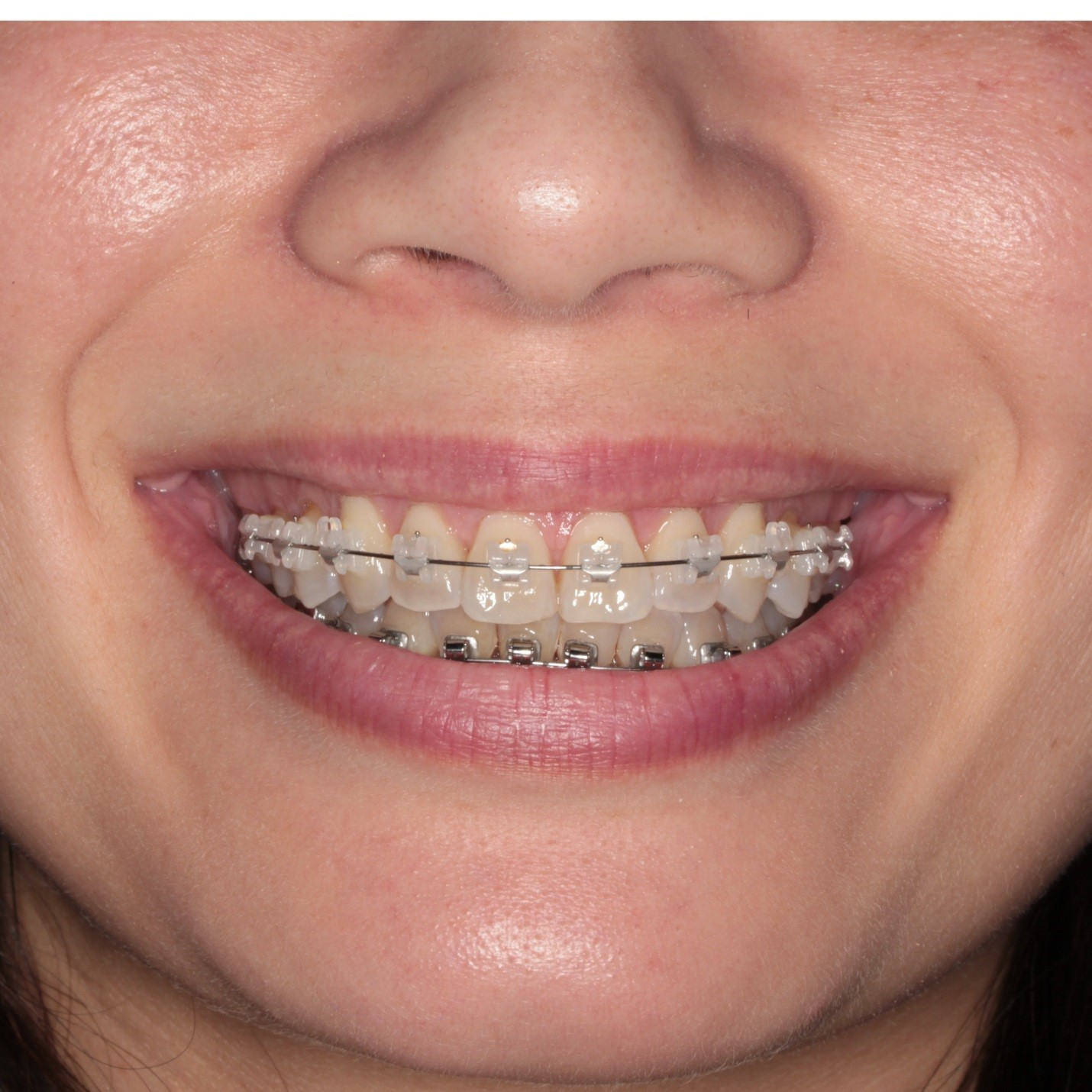 Esthetic Orthodontics 102 Ceramic Austin Orthodontic Arts