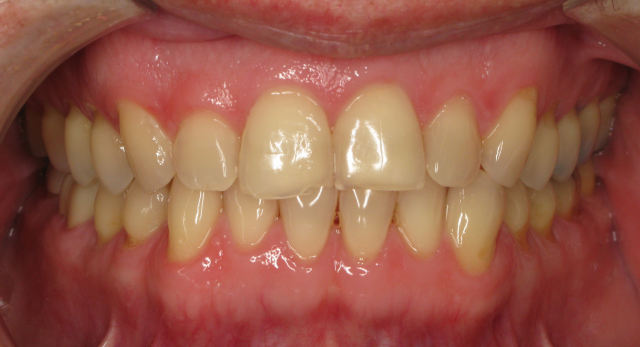 Without Invisalign