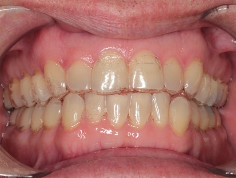 With Invisalign