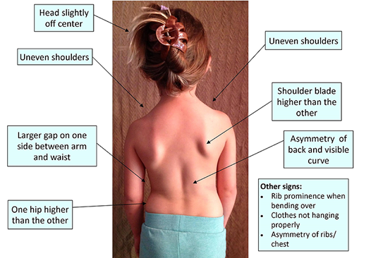 Pain related a scoliosis can be treated by our North Ryde chiropractor and remedial massage therapist