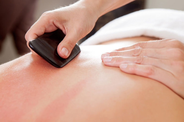 Gua Sha - A traditional Oriental treatment in which the skin is scraped to produce light bruising. Gua Sha releases unhealthy elements from injured areas and stimulates blood flow and healing. Gua sha is sometimes referred to as