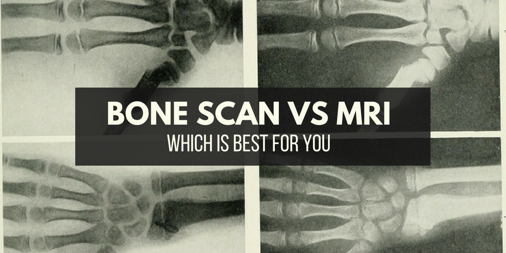 Bone Scan Vs MRI: Which Is Best For You?