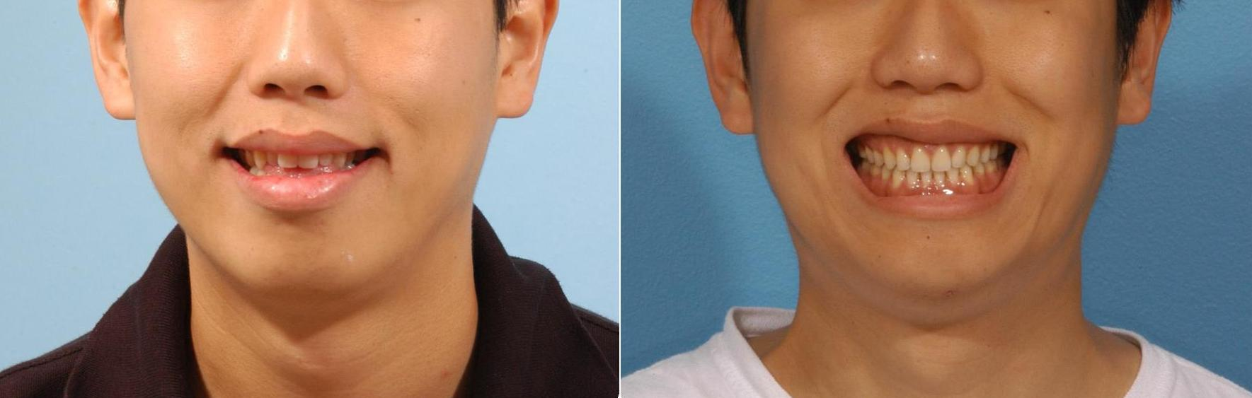 smile before and after