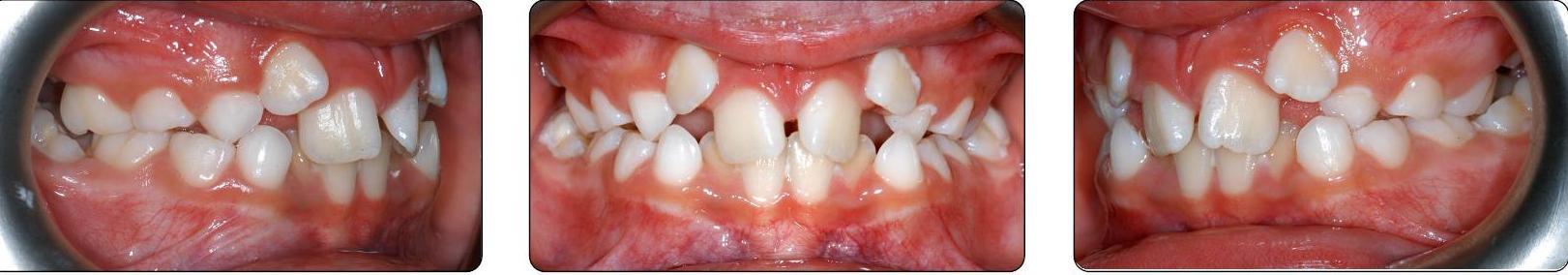 teeth before Phase I