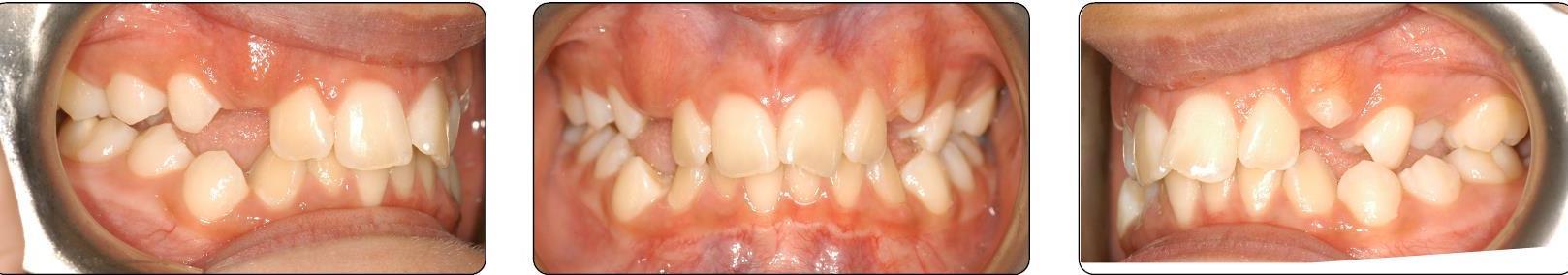 teeth before Phase 2