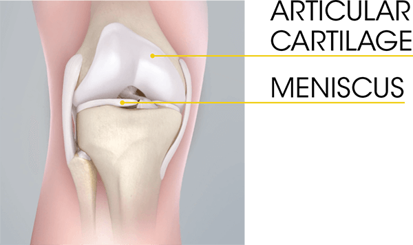 "Understandable confusion exists on the use of the term ""cartilage"" which may refer to two distinctly different knee structures. The medical term ""cartilage"" is used to describe the smooth covering on any joint surface which serves to protect bone from erosion. Colloquially, it is commonly [and incorrectly] used to refer to the meniscus, the crescent shaped pad[s] located between the thigh and shin bones that offer further joint protection."