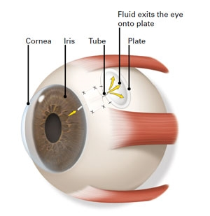 A glaucoma drainage implant creates a new way for aqueous fluids to drain from the eye.