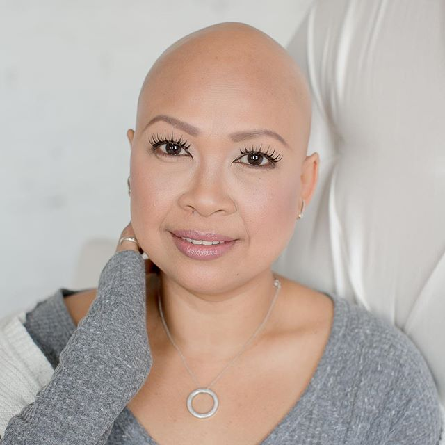 Meet my beautiful friend Caroline! She's the one that inspired me to gather a group of ladies who have Alopecia. She connected me with some friends, and viola! Before I knew it we had 7 ladies of all ages in the studio sharing stories over tacos! I'm forever grateful for this amazing opportunity to share  her story and so many others. To read her story head on over to this link: http://www.clickforhope.net/blog/2016/3/22/carolinealopecia #clickforhope #alopecia #alopeciaawareness #alopecianbeauty #baldisbeautiful
