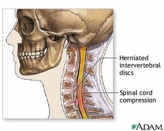 Photo © A.D.A.M., Source: neurosurgery.ufl.edu