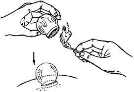 Cupping is a technique that has been used in many cultures to move blood and massage tissue.