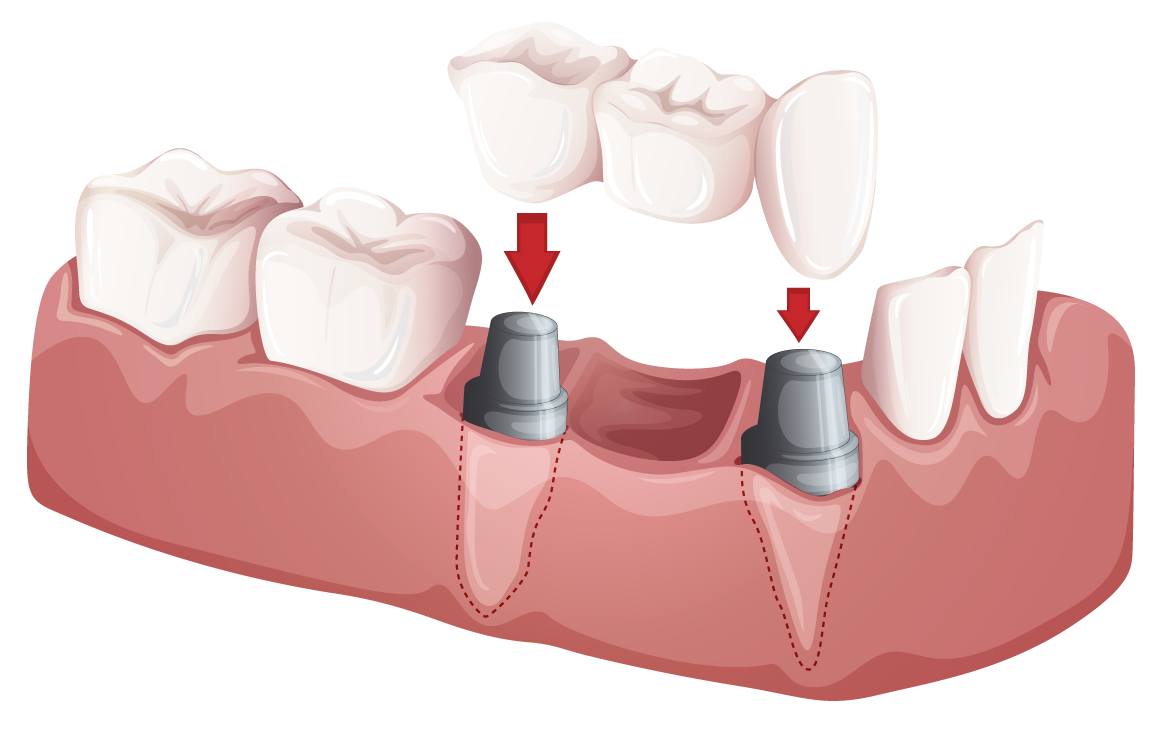 An implant bridge can be used to replace multiple missing teeth.