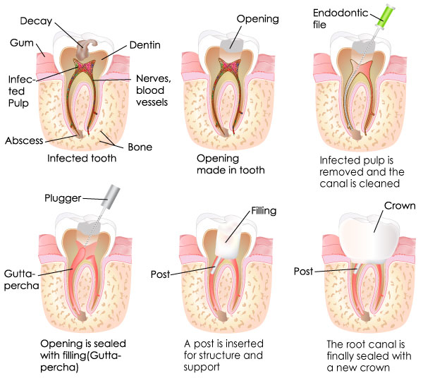 Observe the steps of root canal treatment.
