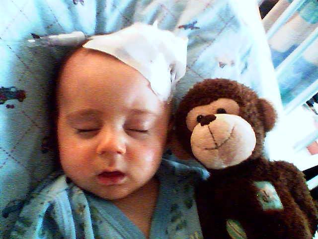 Jackson in the hospital with pneumonia. They couldn't get an IV in his arms, so they had to put it in his head.