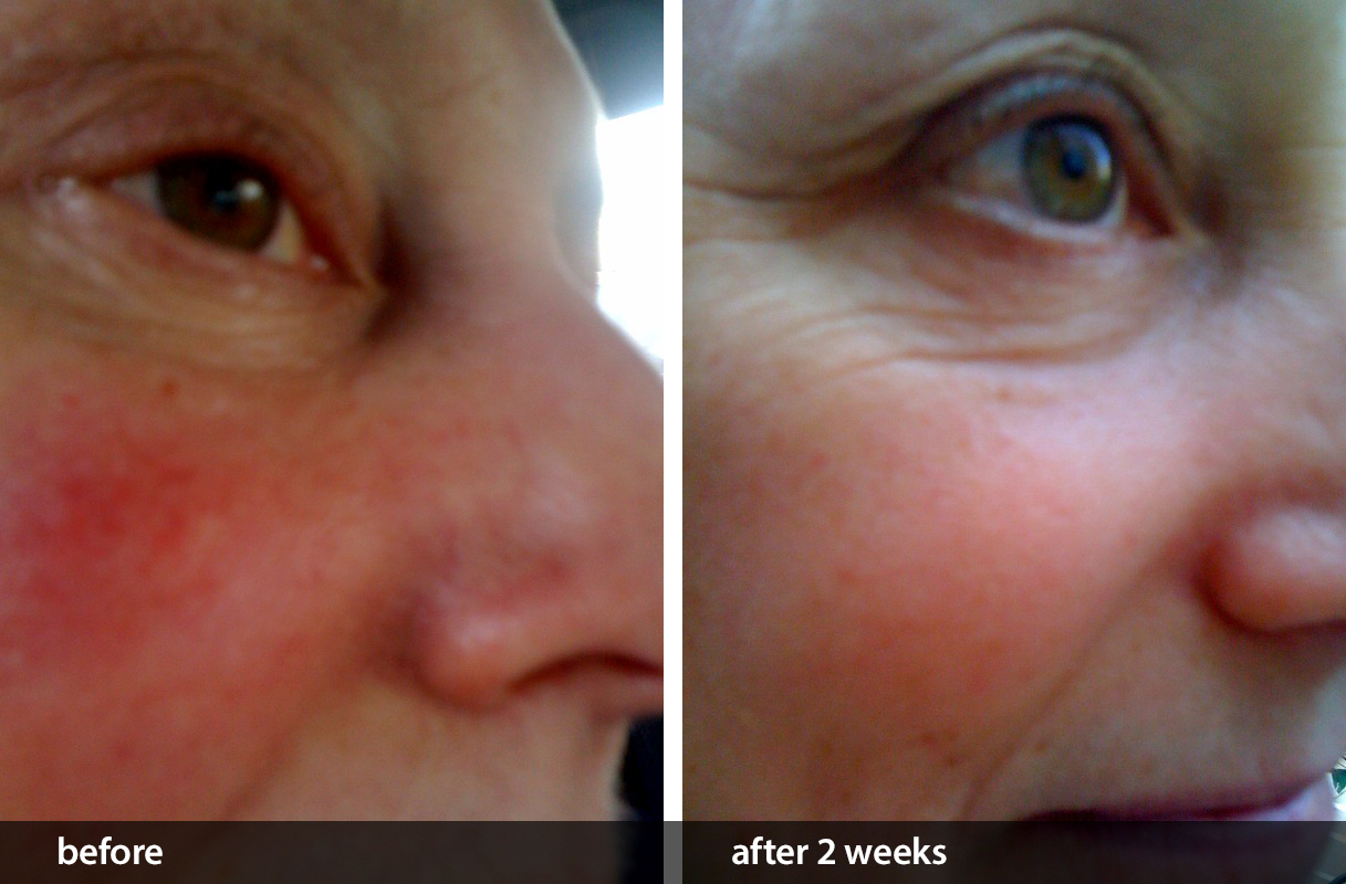 Results of using CELSUS Scar Cream to help calm facial redness
