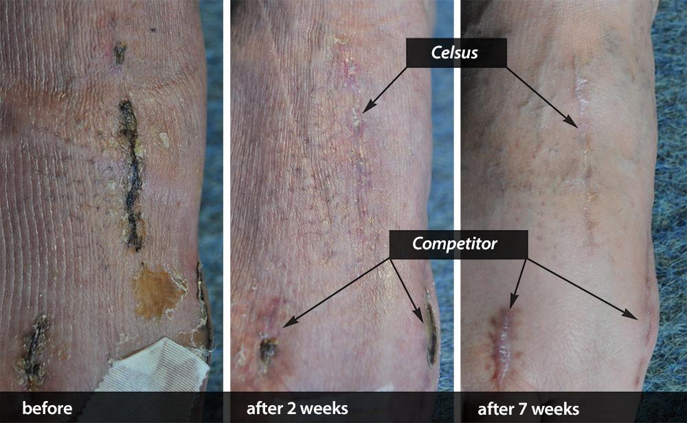 Scar Cream Competitor Comparison