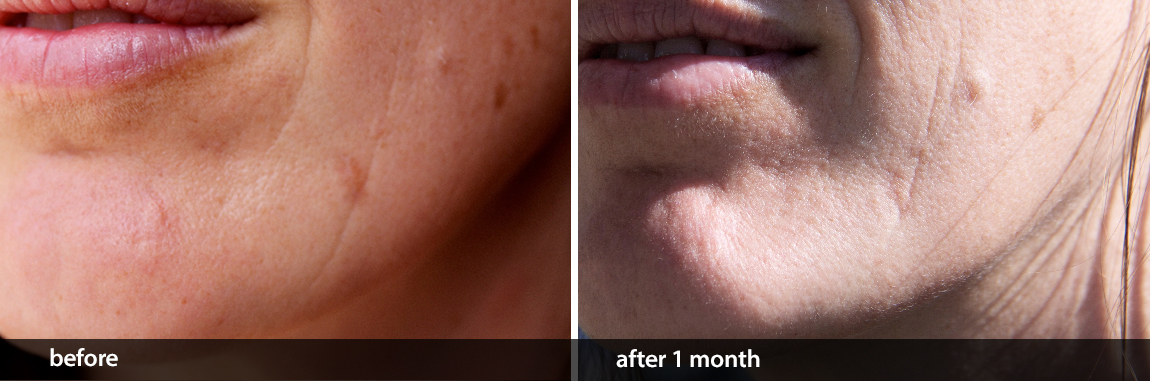 Facial Scar Removal: CELSUS Scar Cream