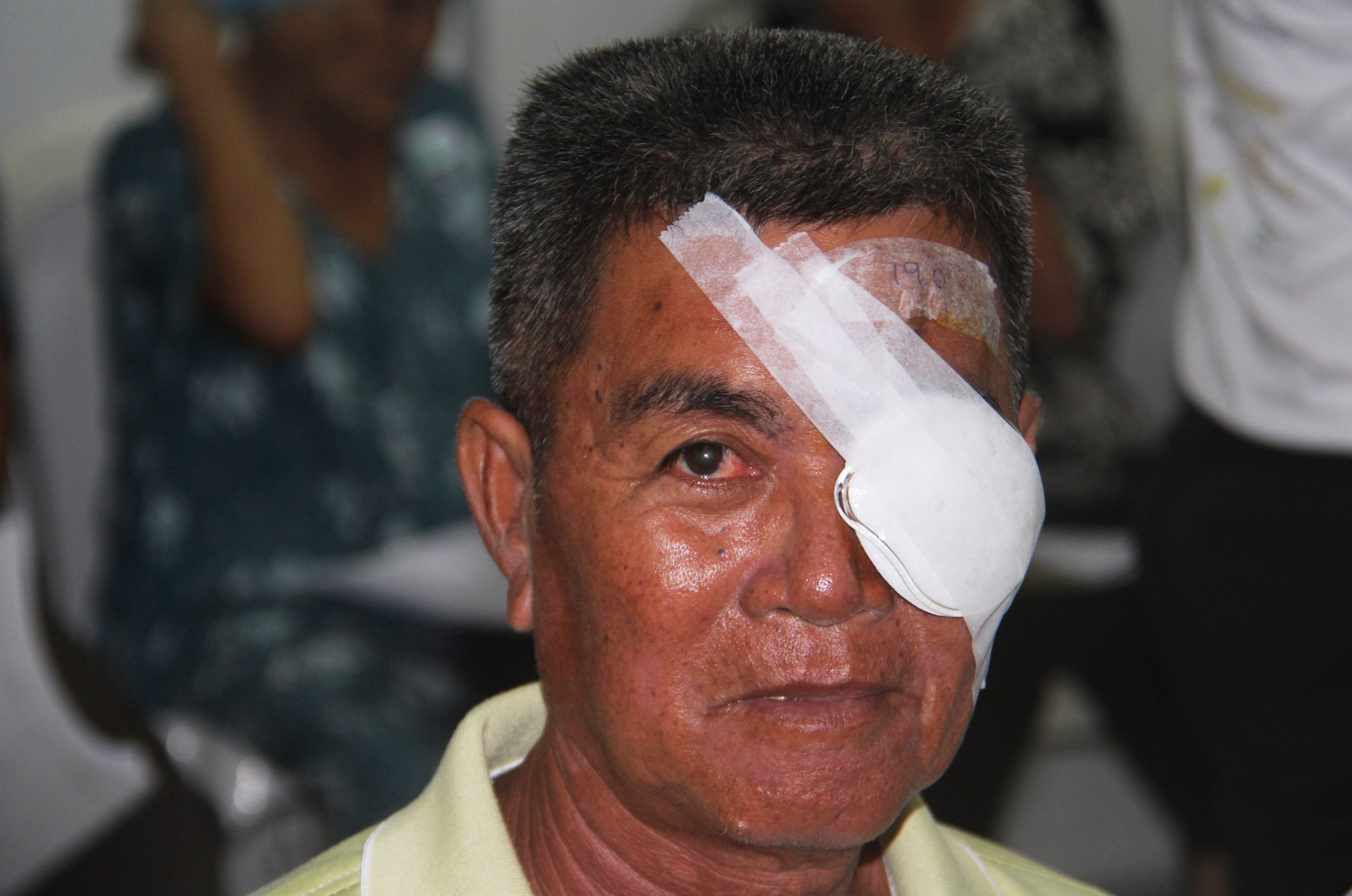 A post cataract operation paient