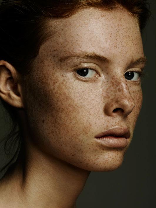 freckles-beauty.jpg