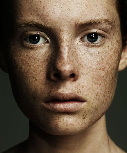freckles-beauty-matthew-shave.jpg