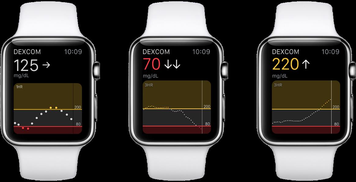dexcom diabetes iot medtech device apple watch ios.png