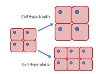 hypertrophy visual