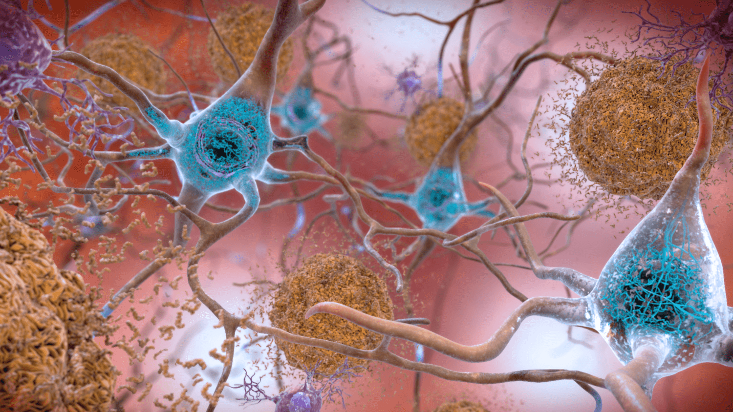 Image of brain cell connections.