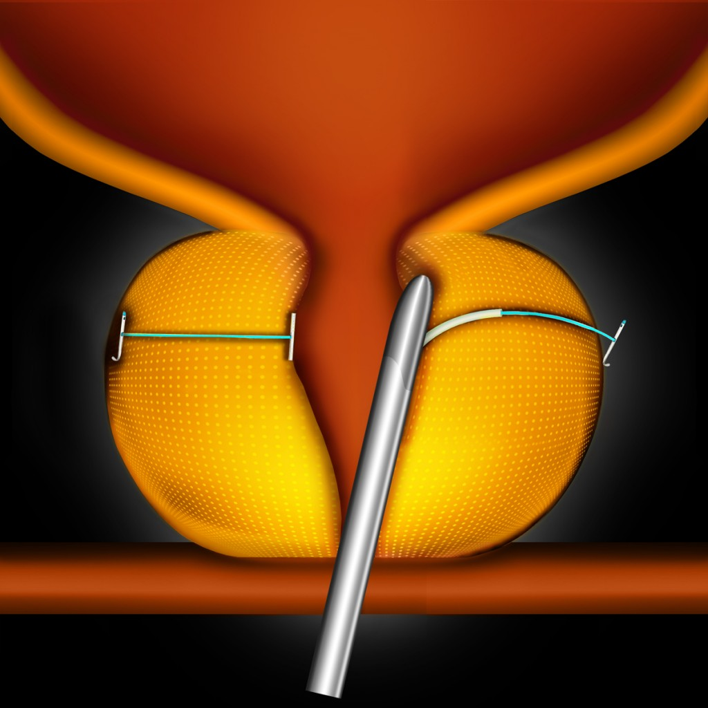 The UroLift device is used to lift and hold the enlarged prostate tissue out of the way so it no longer blocks the urethra.