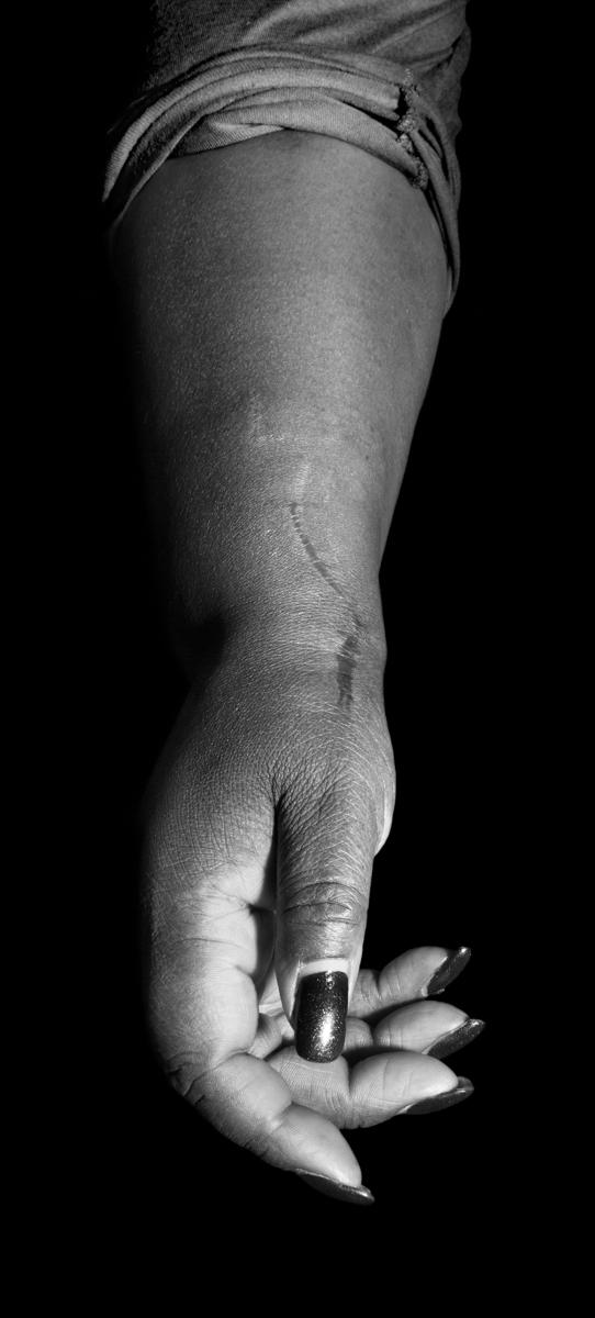 Trace (stitches, skin)