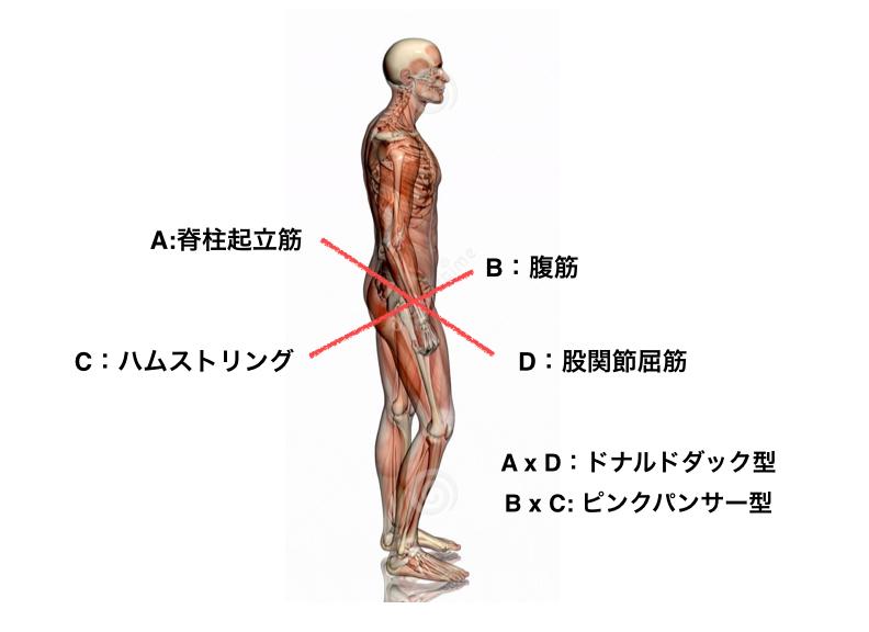 腰痛に悩んでいる人へ。普段の姿勢で分かるタイプ別腰回りのトレーニングのしかた!2