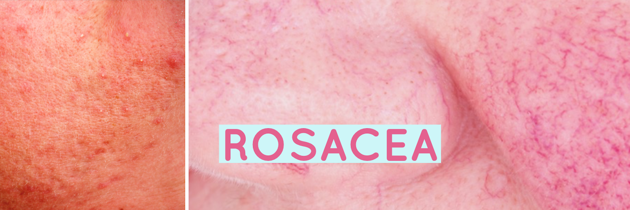 rosaceacoll.png
