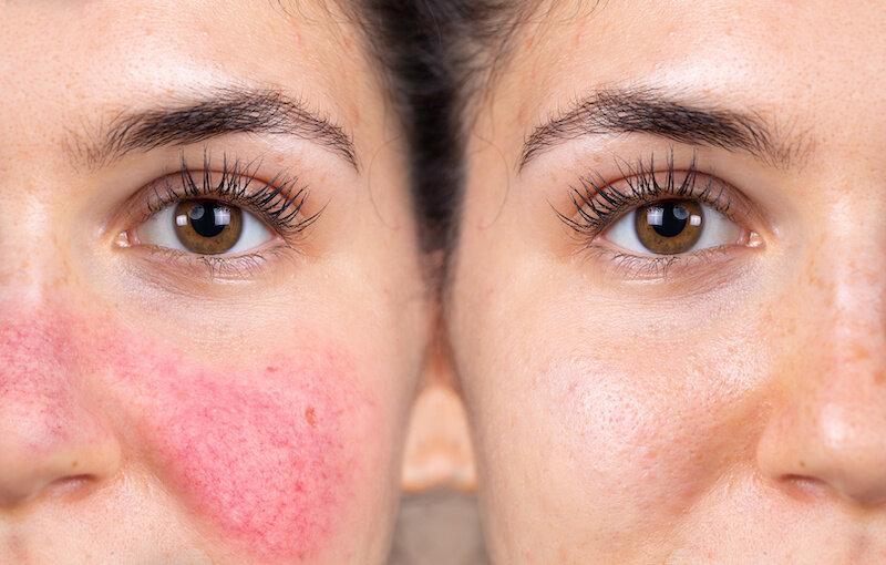 brændende hud i ansigtet