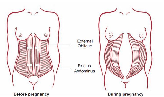 diastasis during pregnancy.jpeg