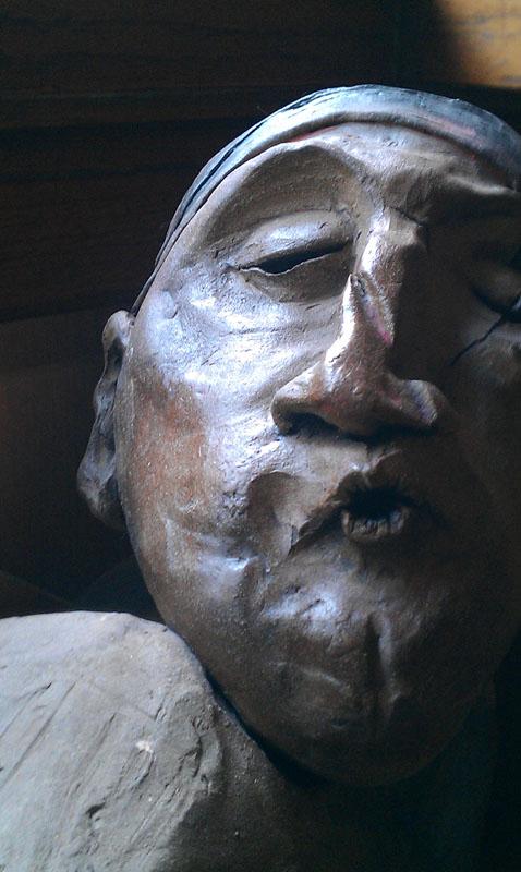 Migraine - detail