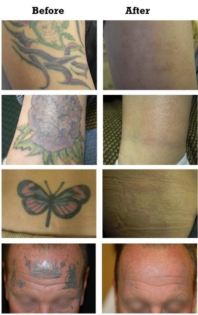 enlever-tatouage-detatouage.JPG