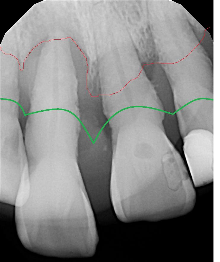 Severe Gum Disease.png