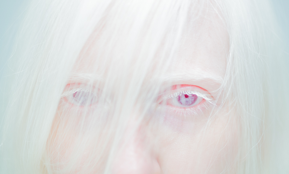Jo Bannon: Vision(s)