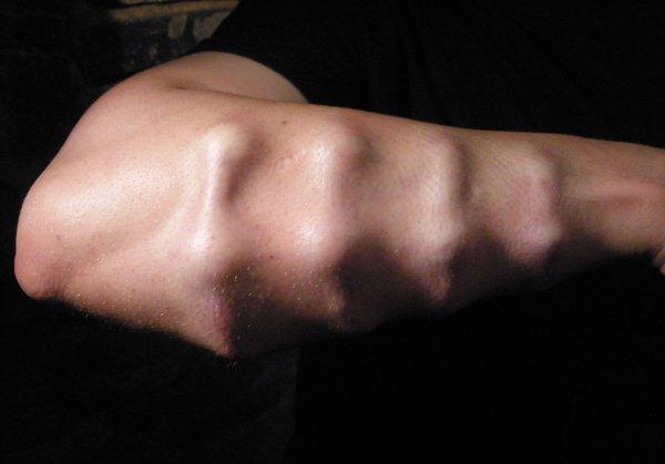 Brian Decker forearm implants.jpg