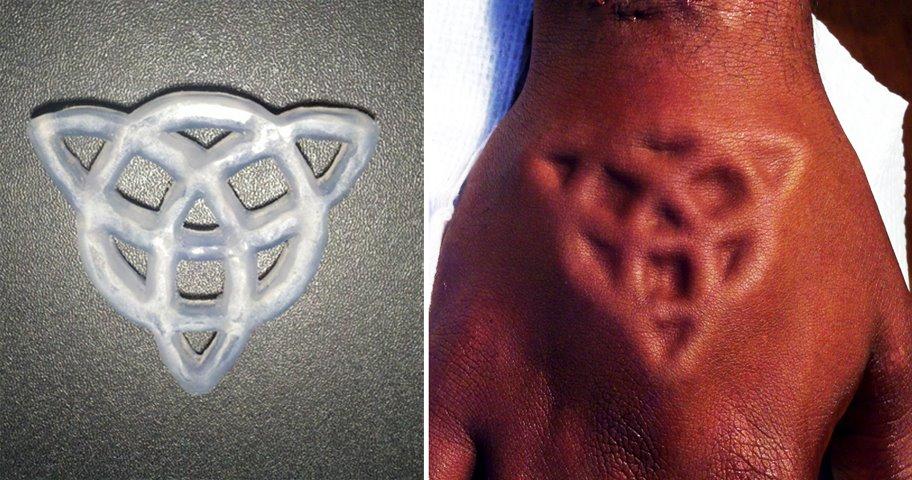 Brian Decker intricate hand implant.jpg