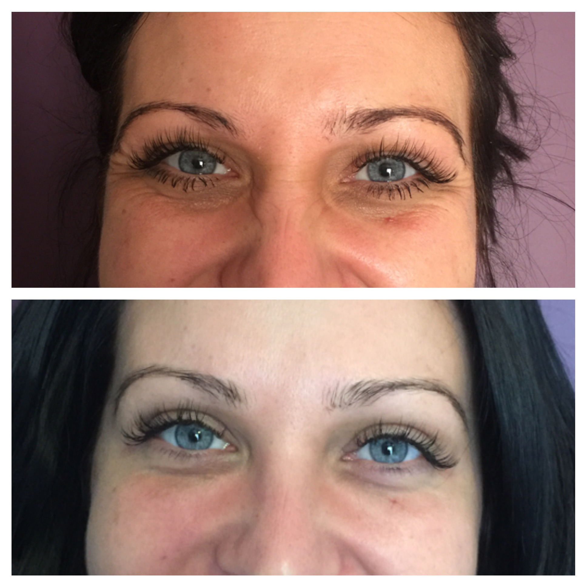 Crows Feet Non-Surgical Treatments