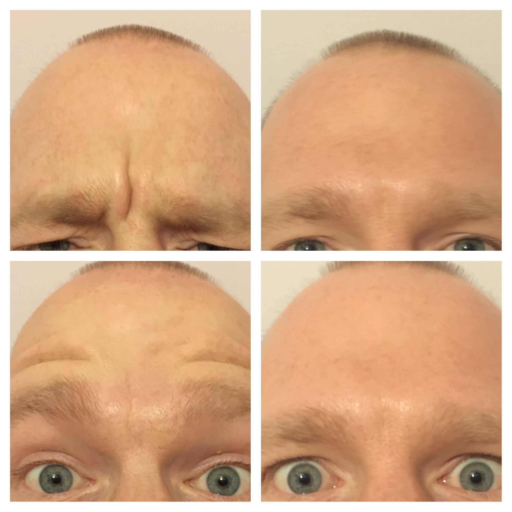 Mens Frown Line Treatment