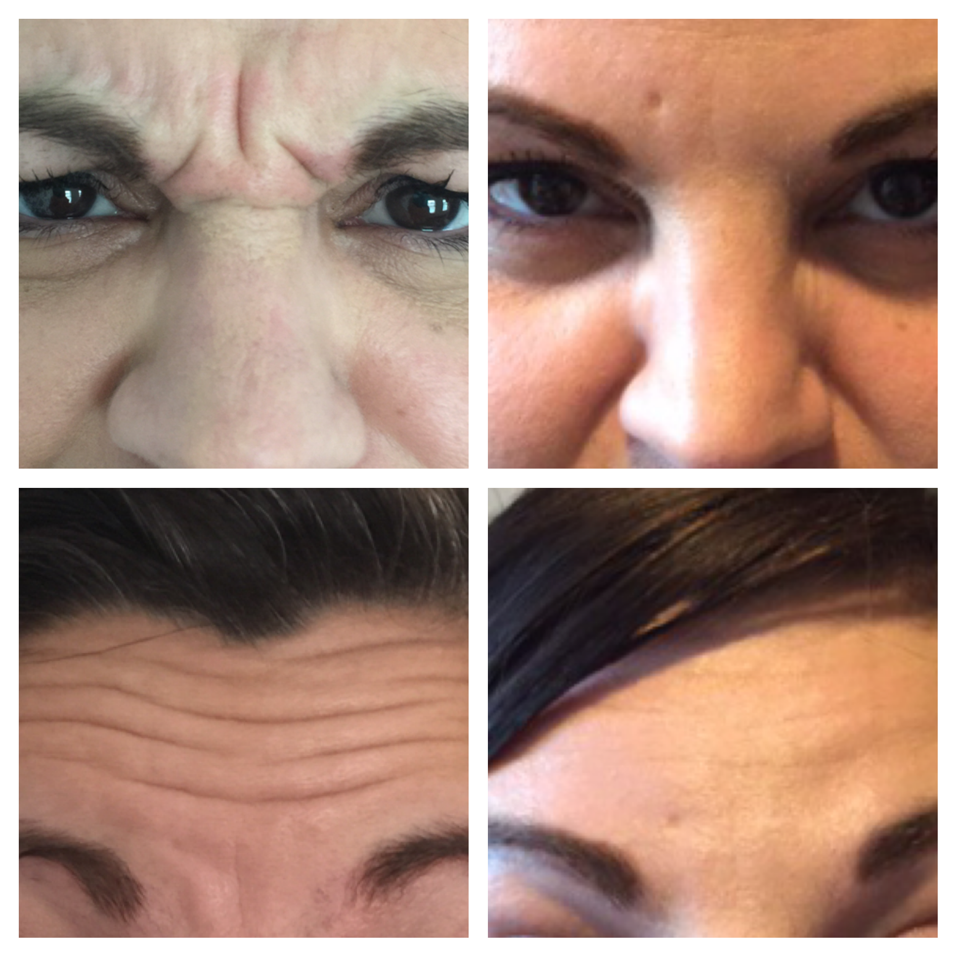 Frown Lines and Forehead Lines Treatment