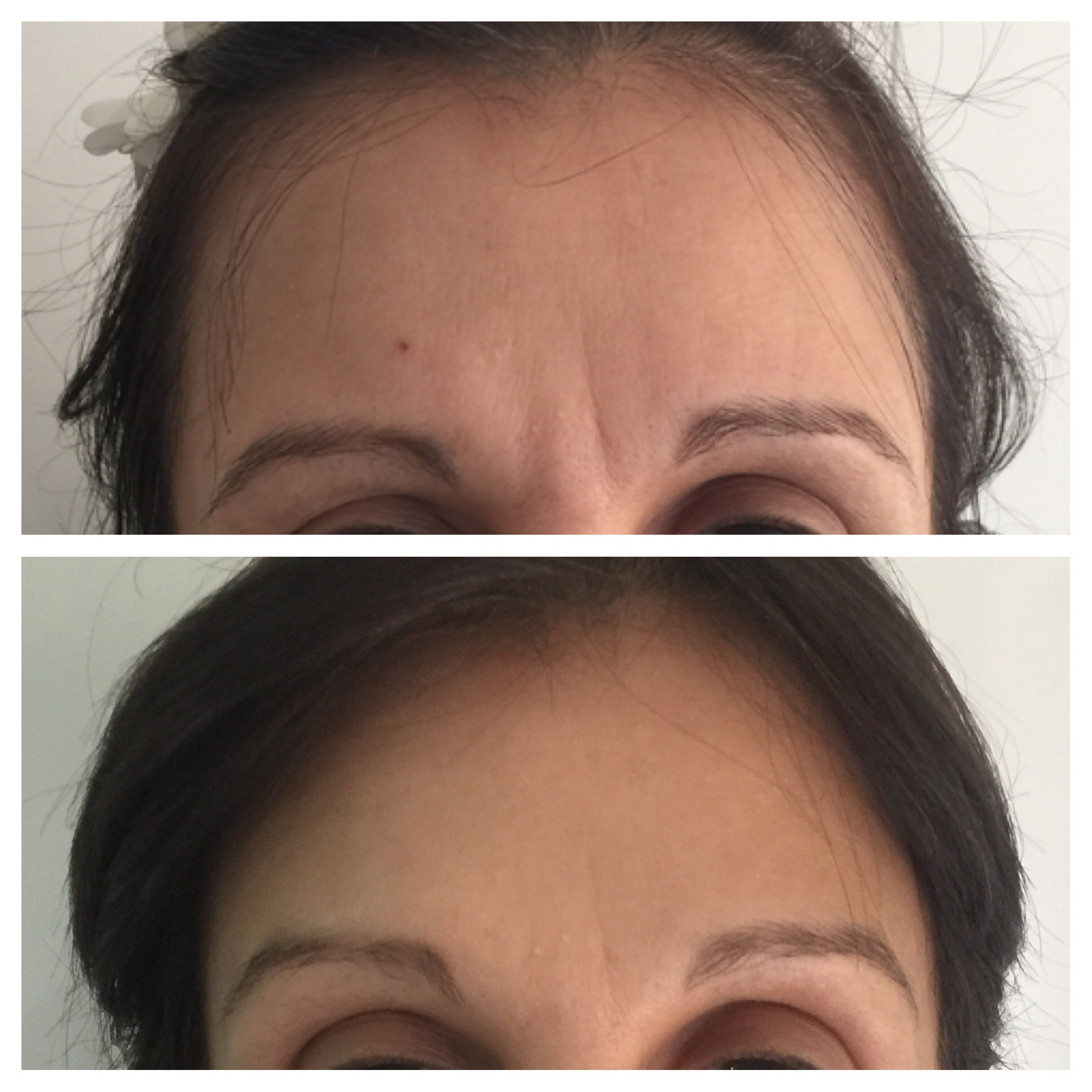 Botox Frown Line Treatment