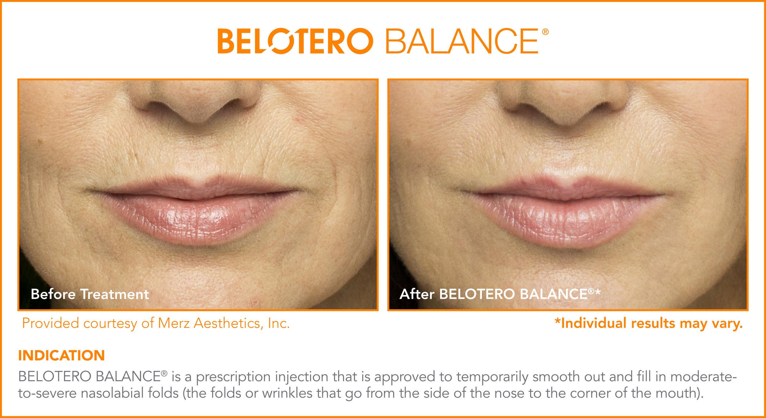 Belotero Dermal Treatments