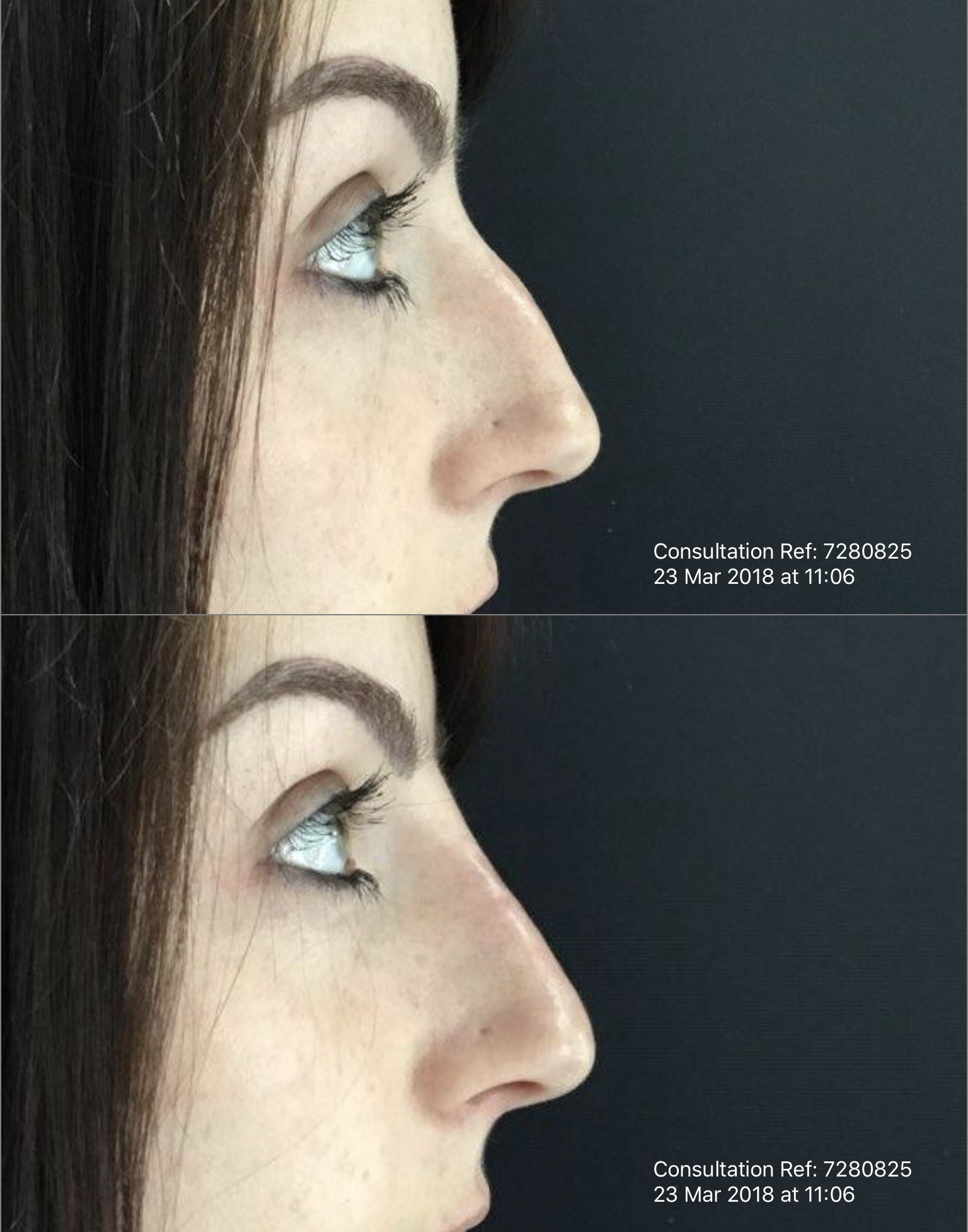 Before And After Non-Surgical Rhinoplasty With Dermal Filler