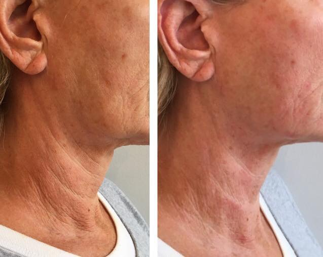 HIFU Non-Surgical Neck Lift Treatment