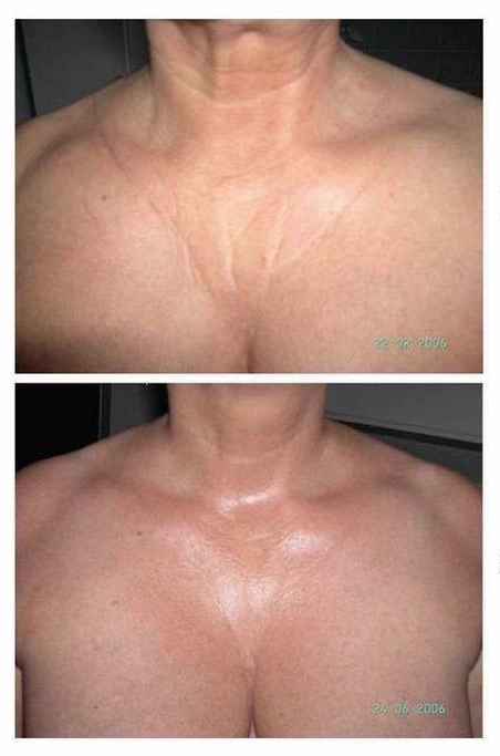 HIFI Ultrasound Skin Tightening