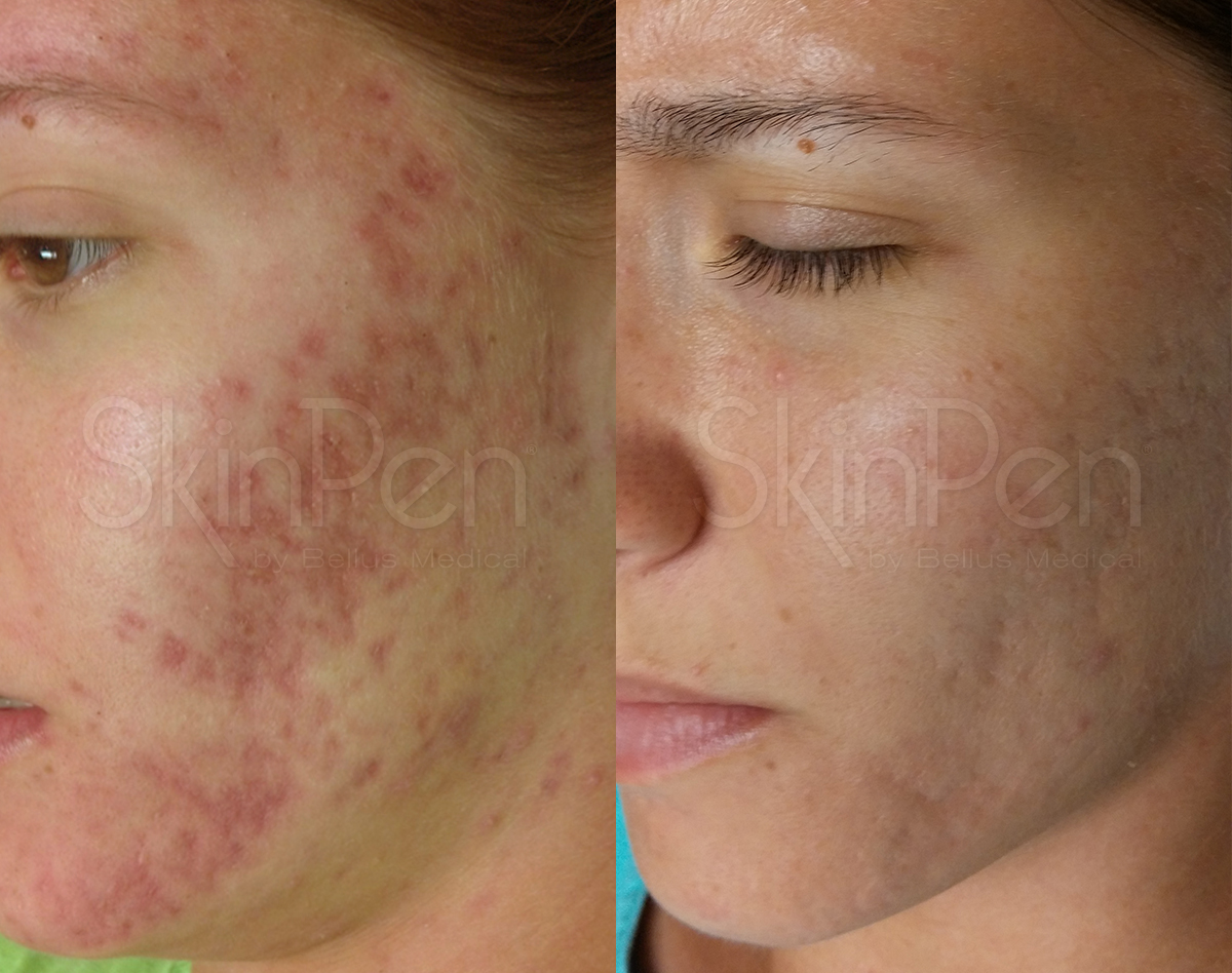 B & A Acne Scarring - 22a-wm (1).jpg
