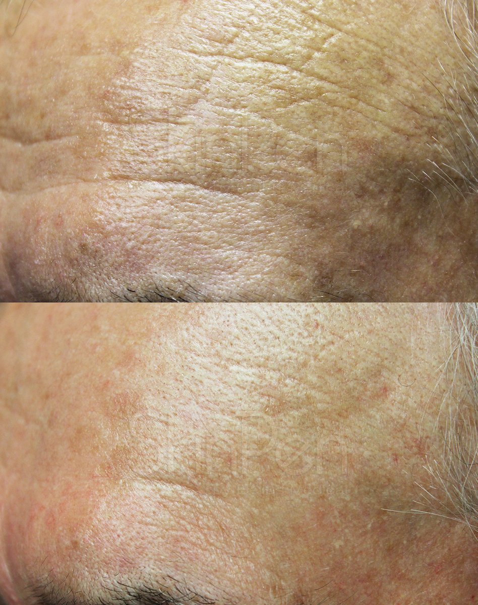 B & A Forehead Wrinkles - 6-wm.jpg