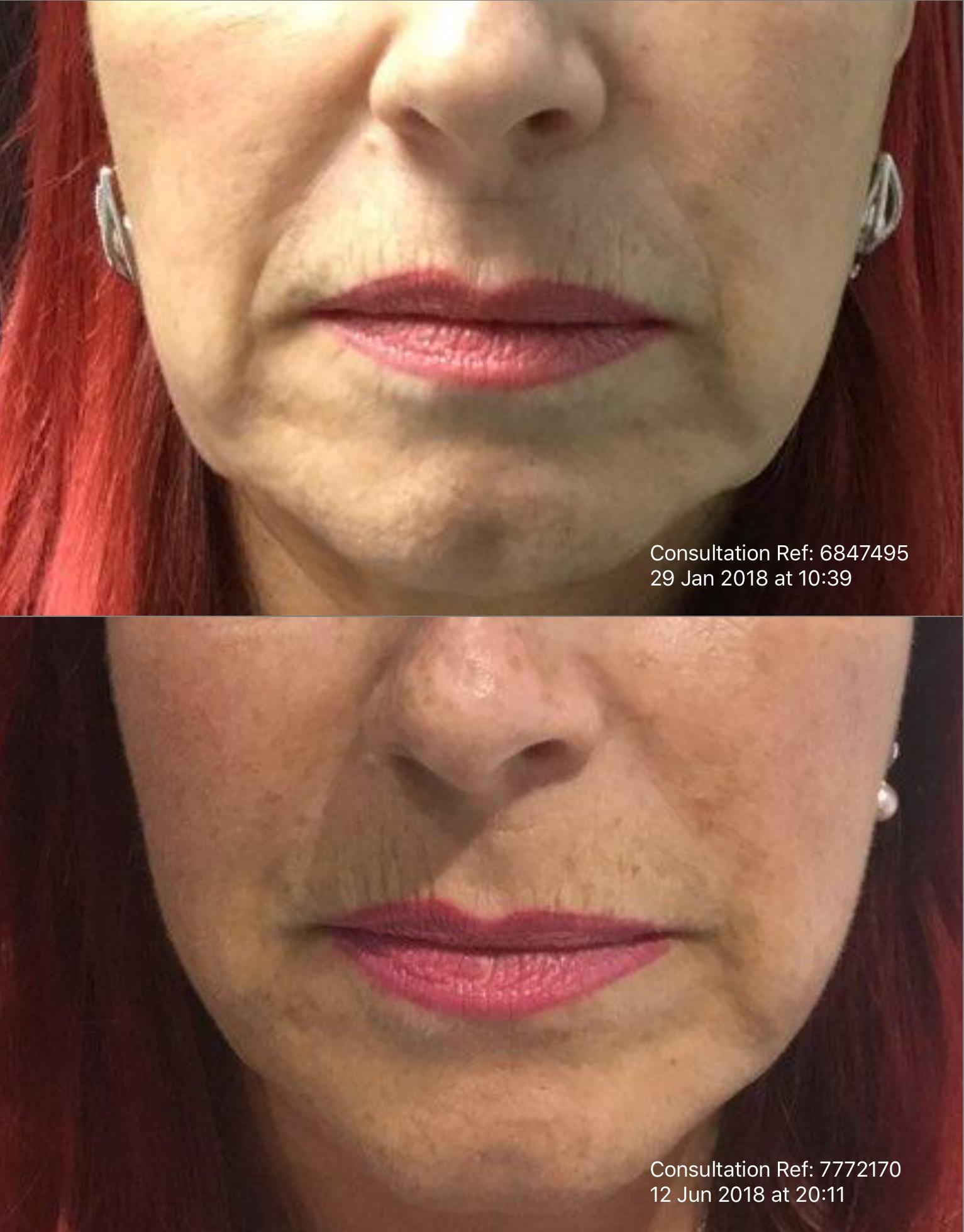 Non-Surgical Dermal Filler Facelift